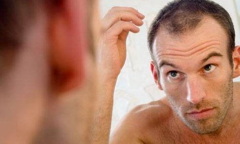 caduta- capelli-come-scegliere-un-centro-affidabile