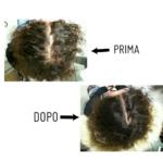 Caduta capelli: il risultato di E.S. grazie al Metodo Dottor Di Nardo